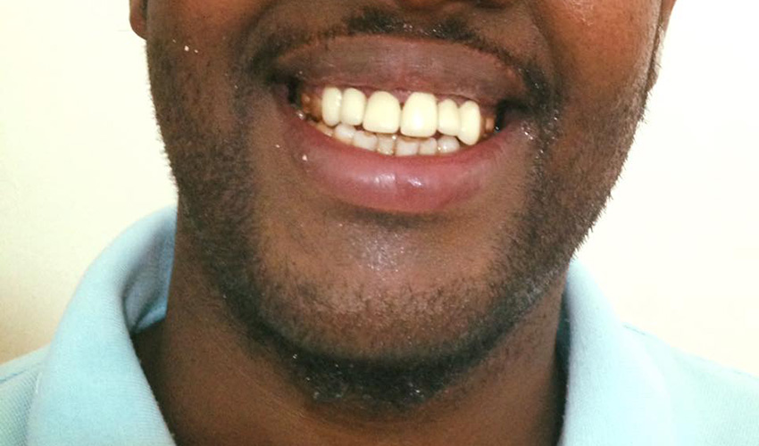 Another smile restored by Noble Dental Clinic.